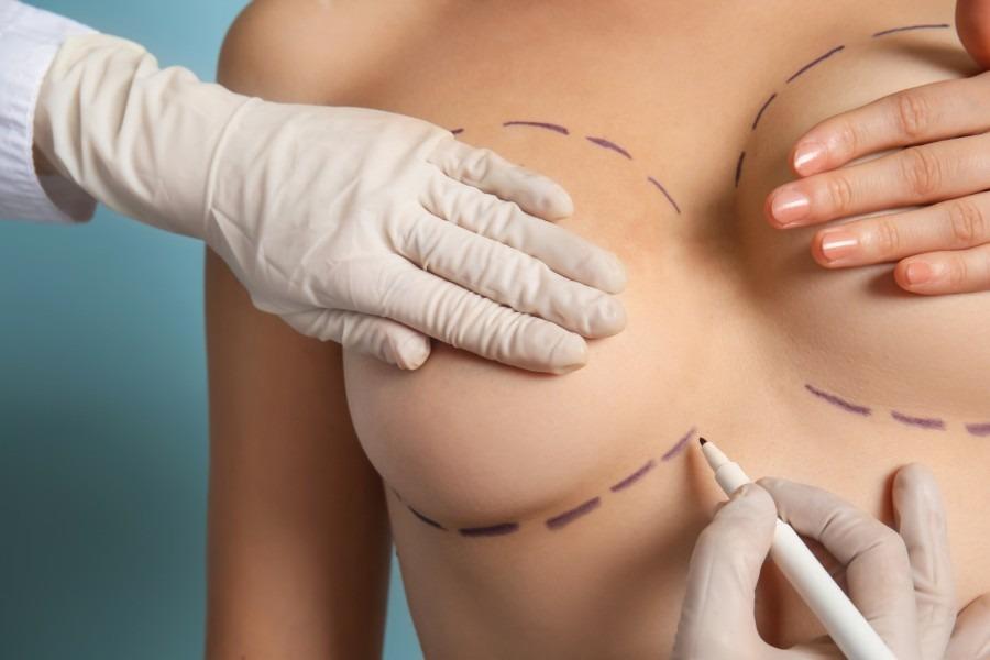 chirurgia-estetica-giovani900x6002-1613733333.jpg